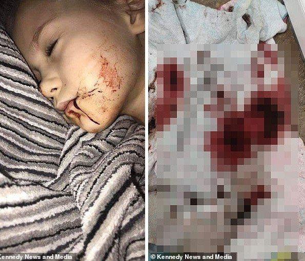 英國5歲女童日前到醫院接受全身麻醉並進行拔牙手術,手術才結束20分鐘就被告知可以...