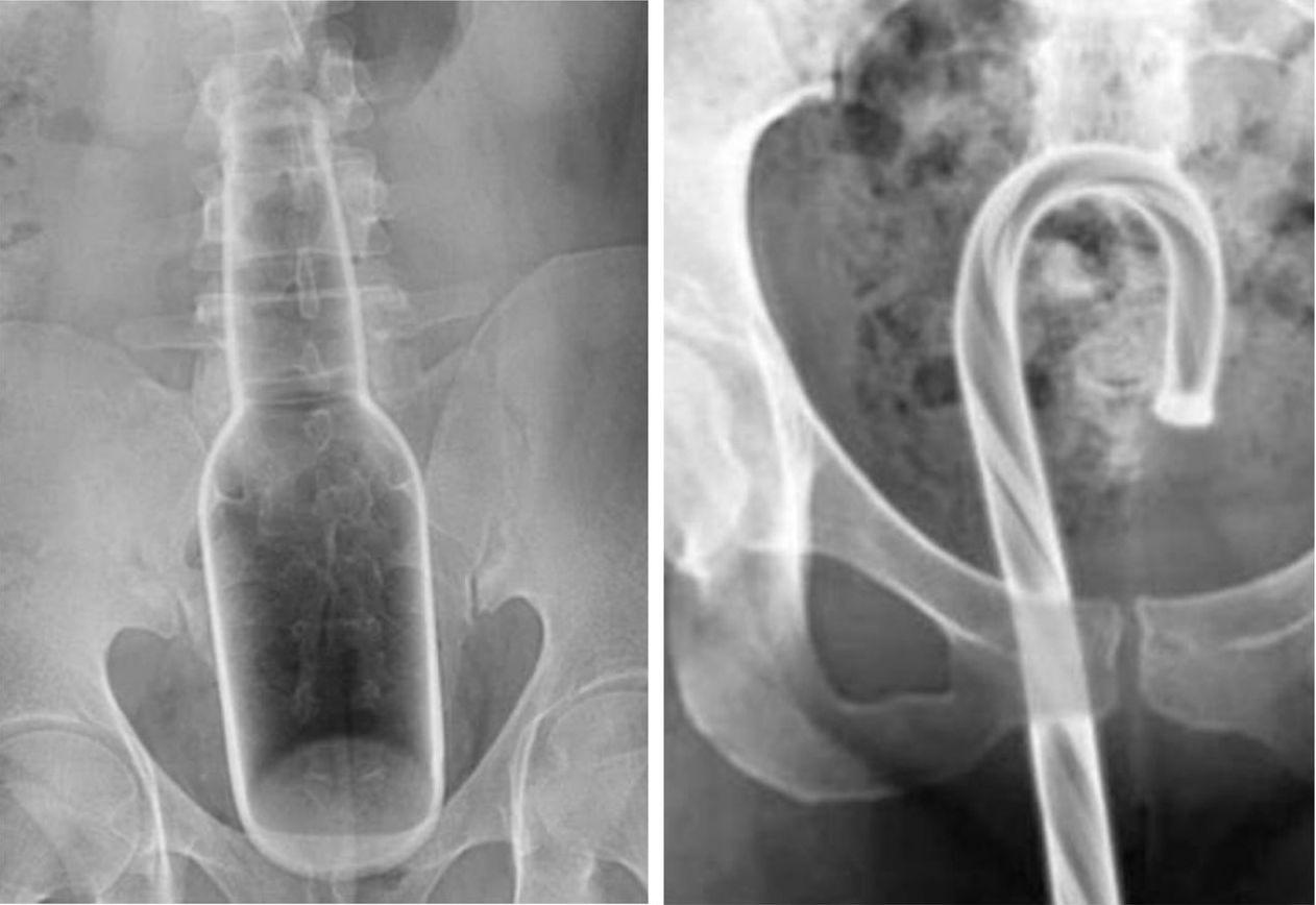 根據美國急診室就醫資料,民眾常不小心將異物塞進體內,其中最常被塞入的器官就是直腸...