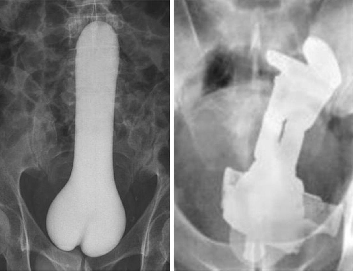 被塞入的東西五花八門,醫生曾發現有病人將情趣用品或巴斯光年模型塞入體內。圖片來源...