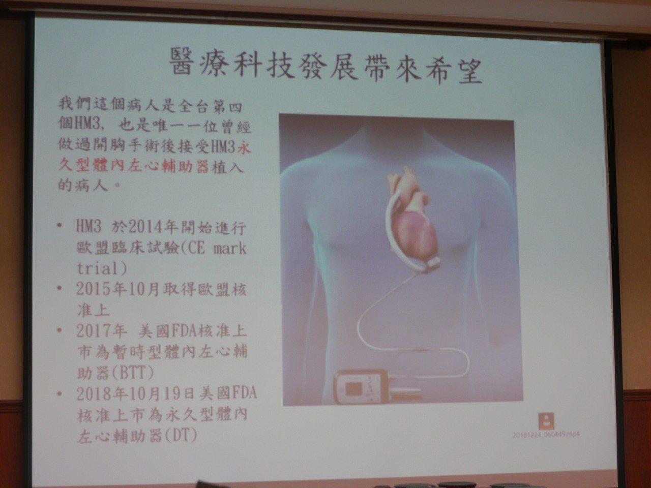 人工心臟是從左心室尖部經鈦金屬導管將血流抽至輔助器幫浦,再經人工血管將血液輸送進...