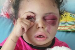 孤女撐眼照片震撼全球 成葉門內戰象徵人物