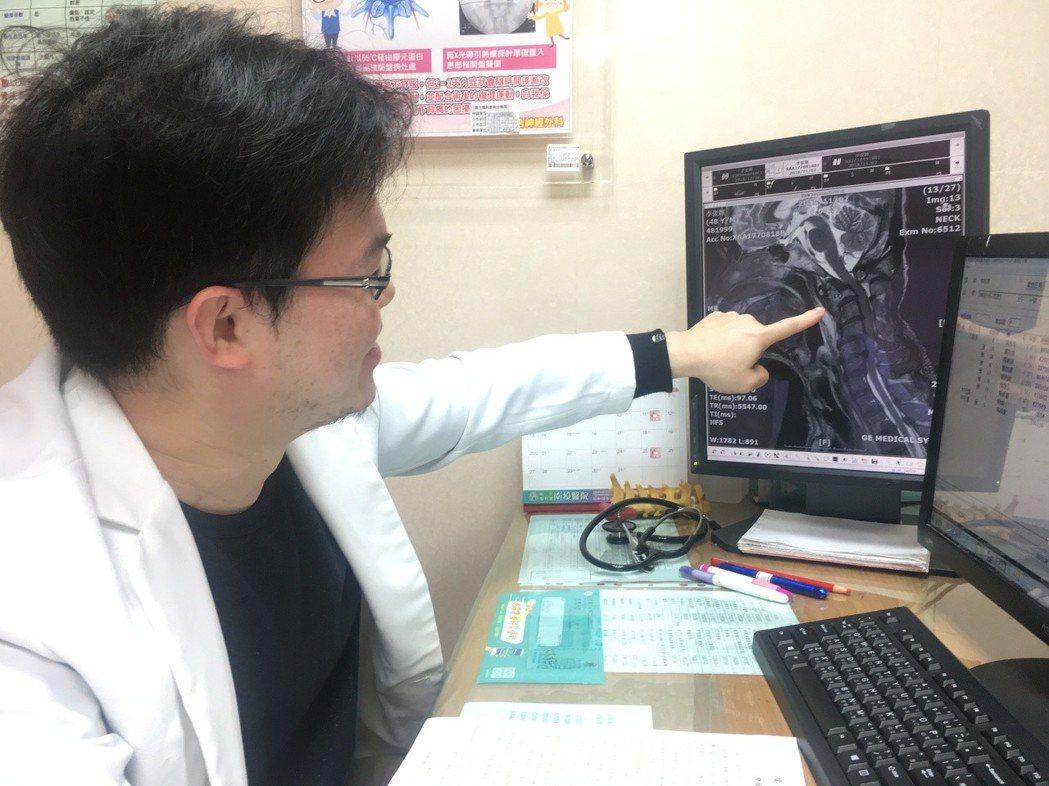南投醫院神經外科醫師林柏君指出李姓病患腫瘤轉移壓迫位置。圖/南投醫院提供