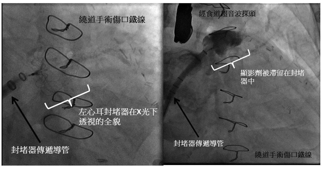 X光透視下,封堵器在患者體內左心耳的情況(左圖)和顯影劑被封堵在封堵器中(右圖)...