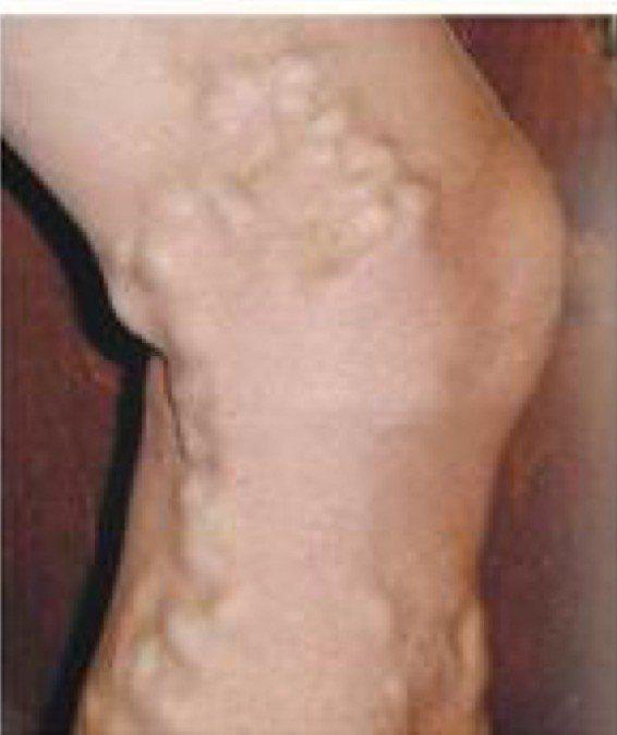 「主幹型靜脈曲張」外觀上腿浮出彎彎曲曲的血管,形狀如蚯蚓,尤其好發大小腿內側及小...
