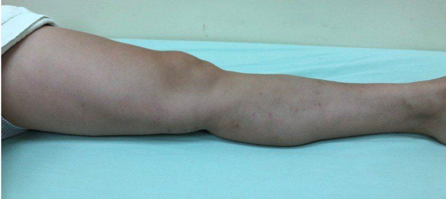 「主幹型靜脈曲張」微創血管雷射手術後,可回復正常的活動,惟須避免站立時間太長,穿...