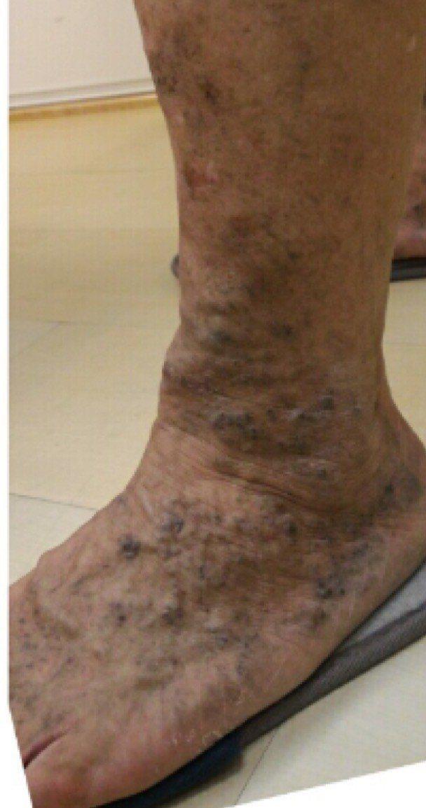 「蛛網型靜脈曲張」體表雷射手術後,表皮會稍微紅腫,24小時後,部分表皮會結痂。術...