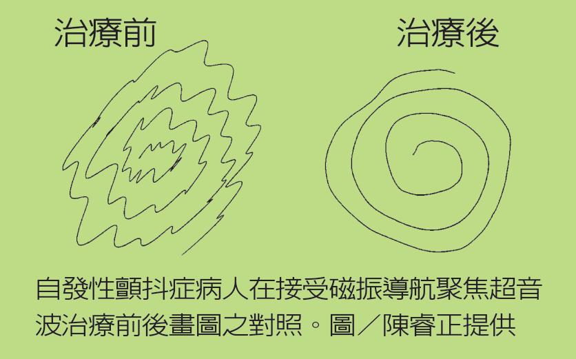 自發性顫抖症病人在接受磁振導航聚焦超音波治療前後畫圖之對照。 圖/陳睿正提供