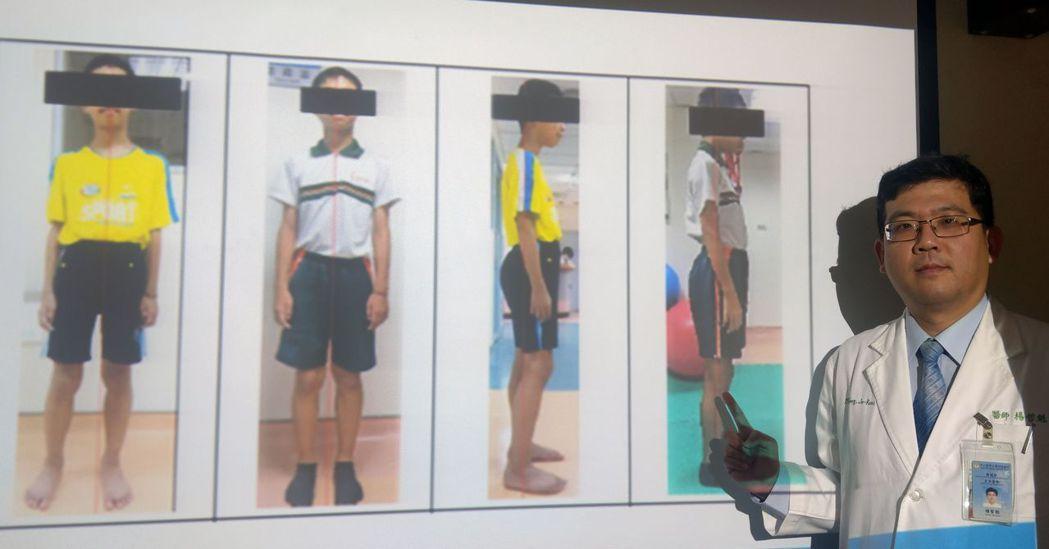 復健科醫師楊哲魁說明,林姓男童原本長短腳(左一、左三),經一個月治療,體態回復正...