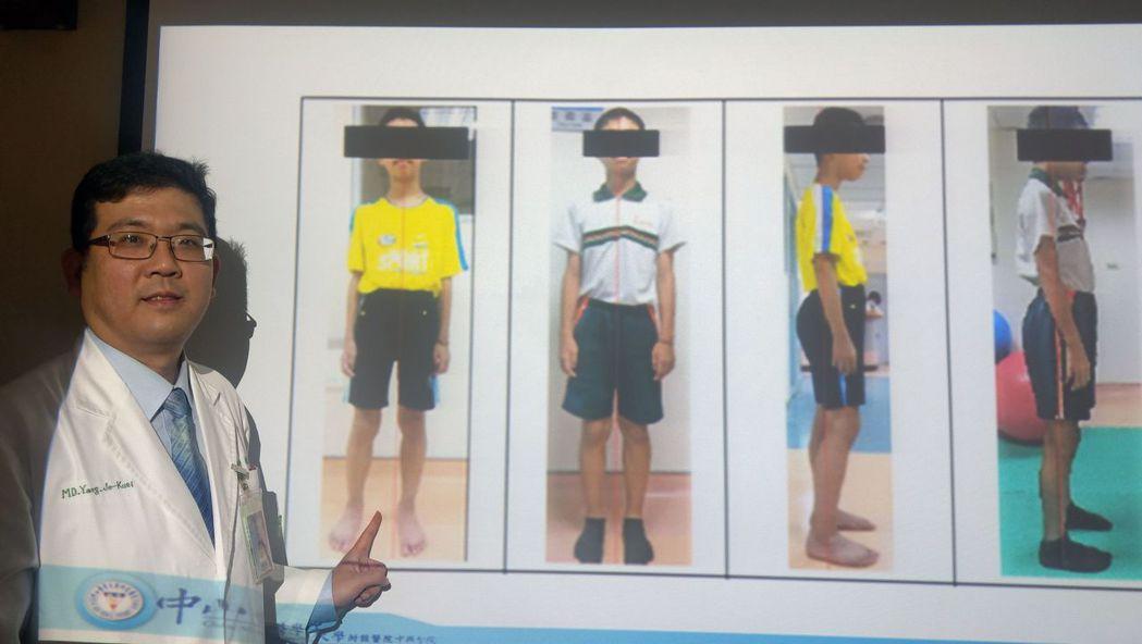 復健科醫師楊哲魁說明,林姓男童原本是長短腳(左一、左三),經一個月治療,體態回復...