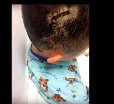 高昇頭部因為受傷縫了多針。圖為律師提供