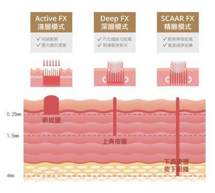 ▸ UP雷射可量「深」訂製,有淺層、中層、深層三種模式