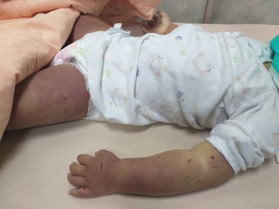 台南市1歲6個月女童遭虐死,遍體麟傷。圖/翻攝自臉書