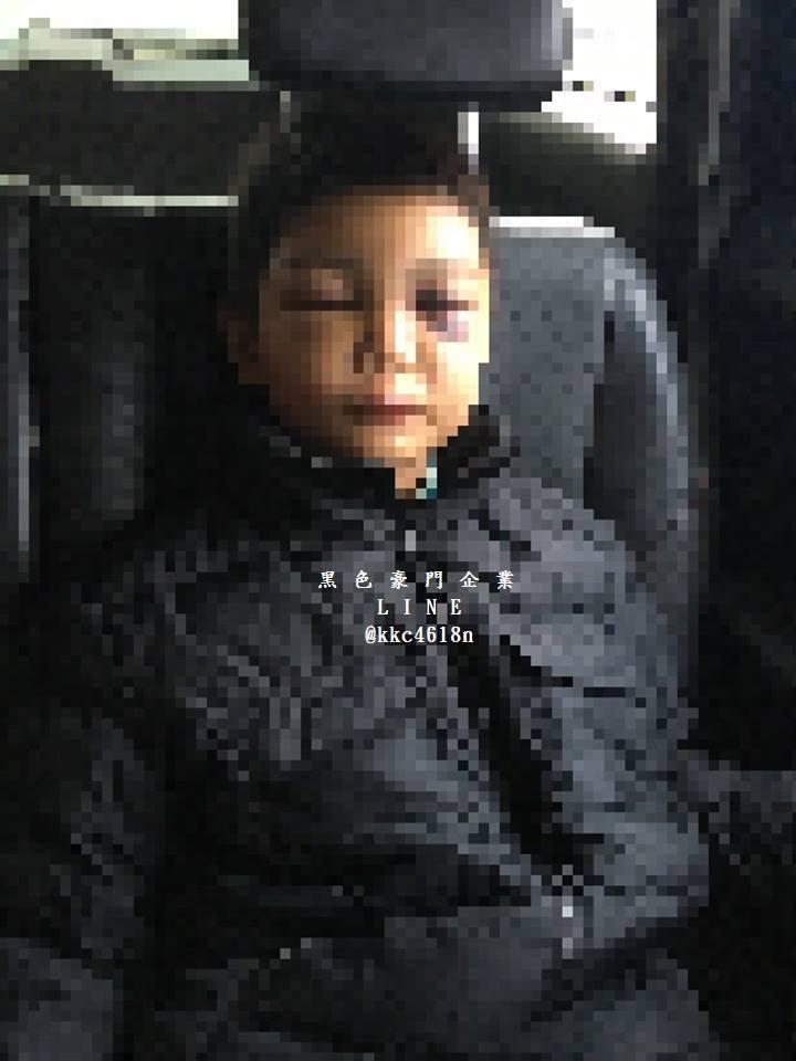 9歲男童鼻青臉腫,傳遭繼父、生母毆傷。圖/取自黑色豪門企業臉書社團