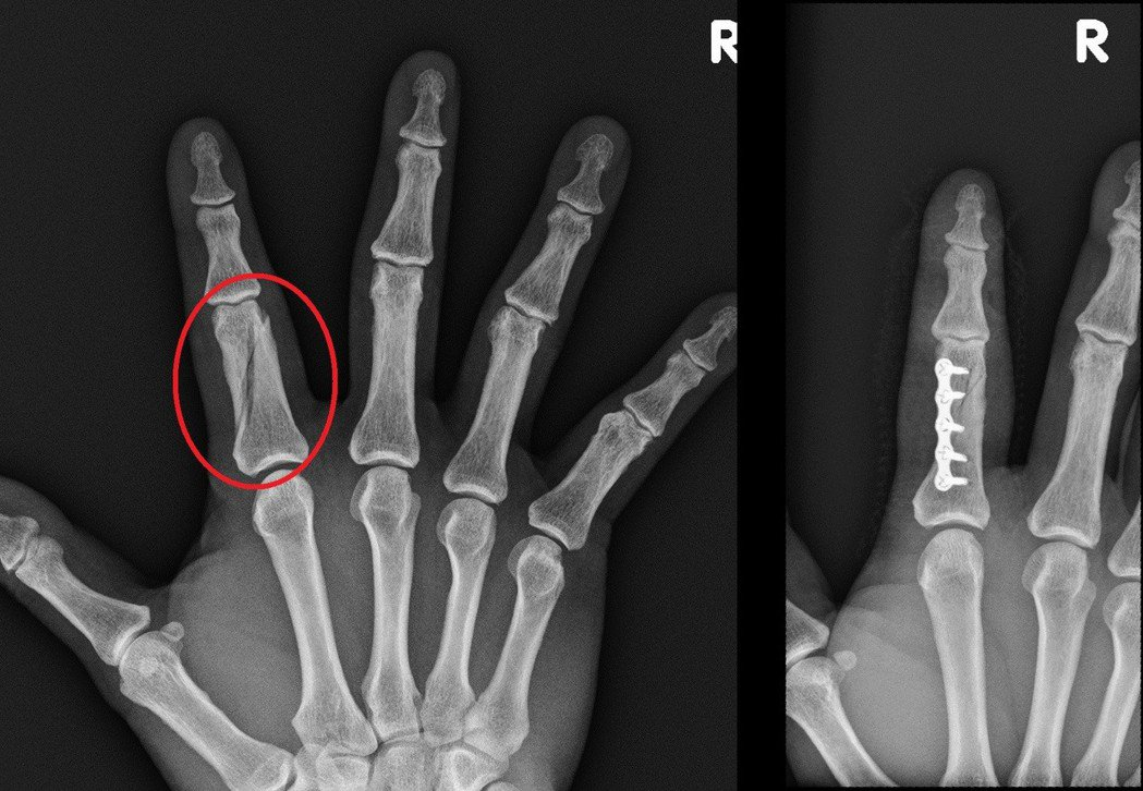 患者打球時右手指受傷後又喬骨,疑因此造成嚴重骨折,X光上顯示已有「分叉」情況(圖...