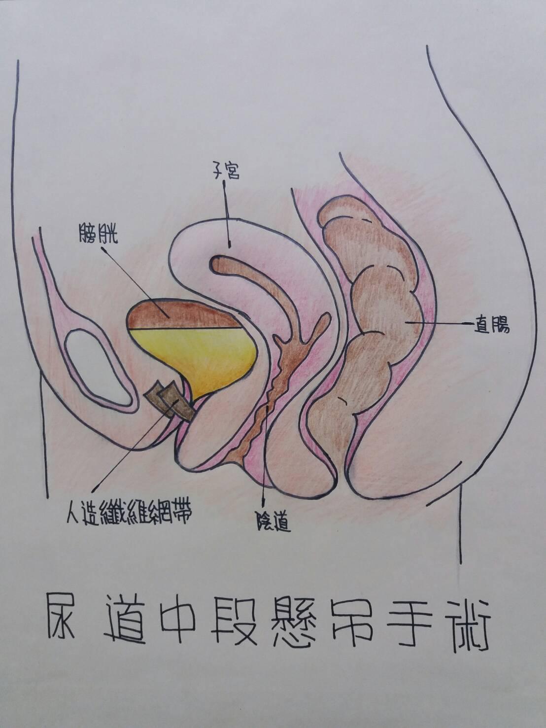 「尿道中段懸吊手術」將人造纖維網帶植入婦女中段尿道下組織,利用網帶纖維空隙與尿道...
