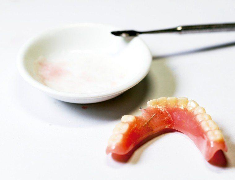 一項針對超過36500名年長婦女的研究發現,掉牙嚴重的人發生高血壓的風險,比一般...