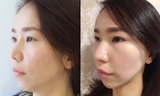案例A.共使用提美拉可吸收縫線:輪廓線4條、法令紋4條、淚溝 4條、眼尾 4條,...