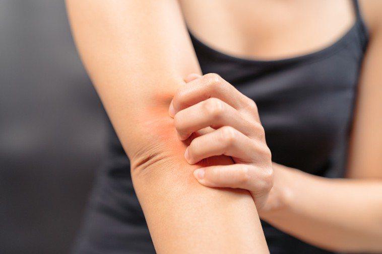 抓癢、搔癢、濕疹示意圖。ingimage