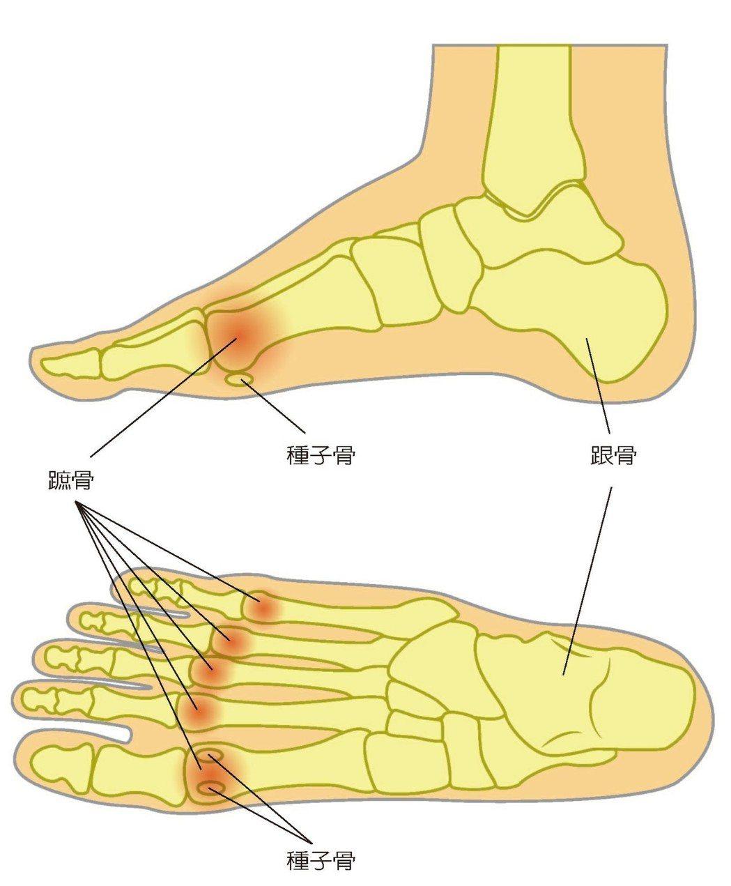 嚴重拇趾外翻 導致前蹠痛 圖/123RF