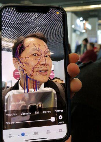王正坤醫師親自體驗軟體,對準鏡頭瞬間,電腦已經把王醫師臉上的血管,全部呈現在手機...