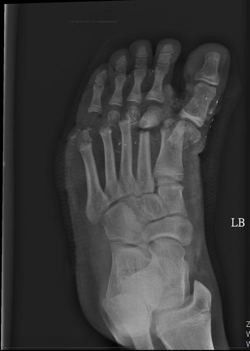 男童左腳掌被夾斷,童綜合醫院急救後,成功接回。圖/童醫院提供