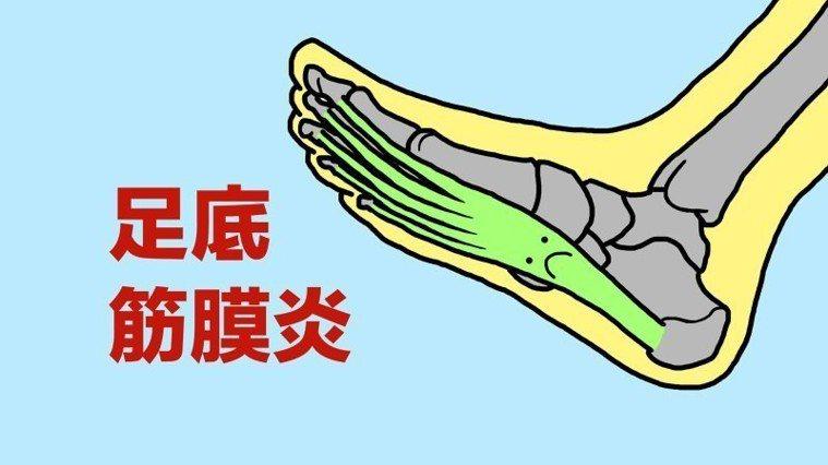 足底筋膜炎是很常見的一個症狀,通常是因為久站、久走、跑步距離過長、扁平足、高弓足...