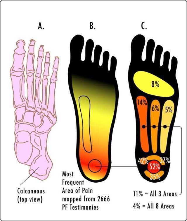 足底筋膜炎疼痛區域 (圖片來自 Wiki ,CC BY-SA 3.0) 圖片提供...