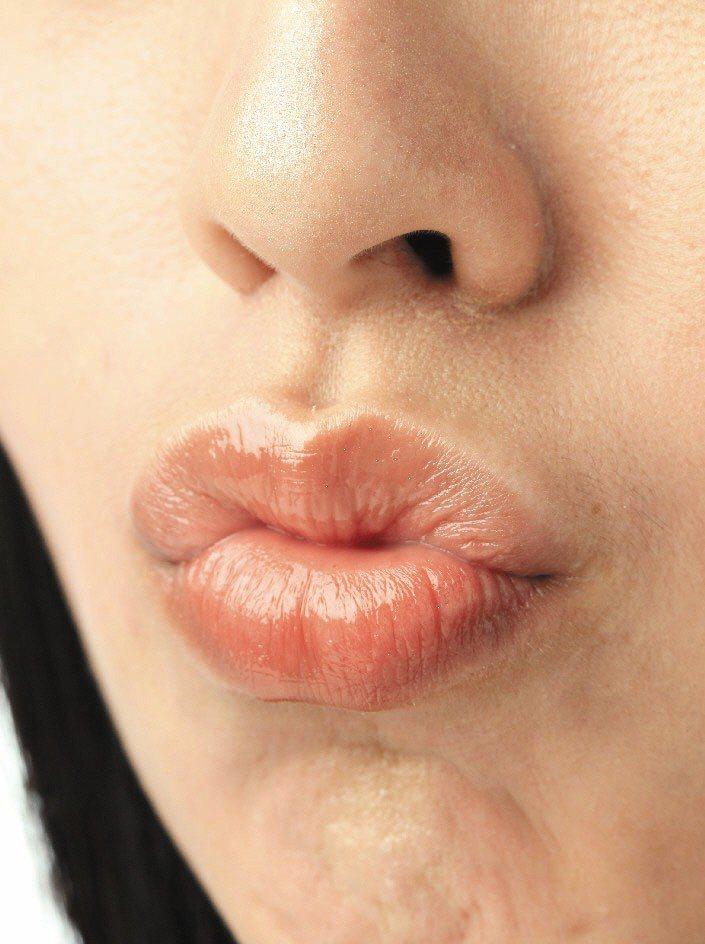 避免嘴唇乾裂,建議補充水分、避免抿嘴、塗抹護唇膏保護。圖╱聯合報系資料照