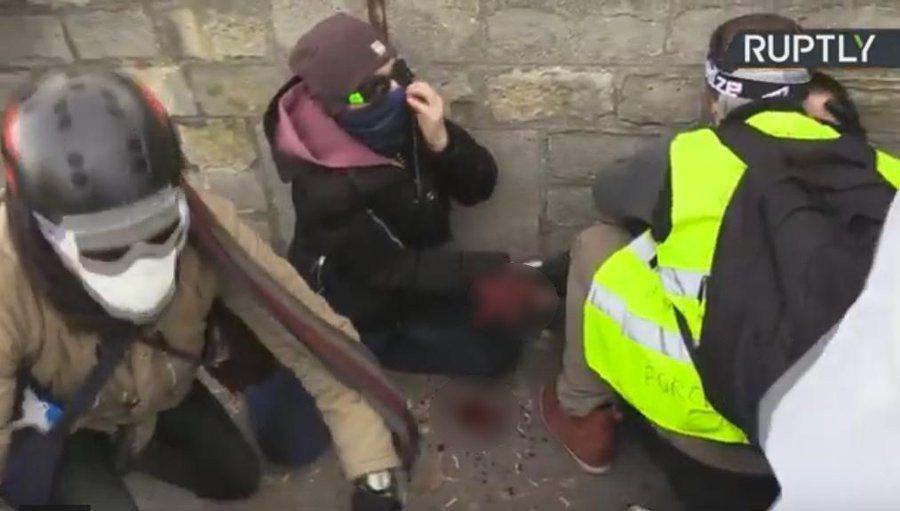 疑似黃背心示威者手臂遭炸斷的畫面。圖/取自яévolte fiscale推特
