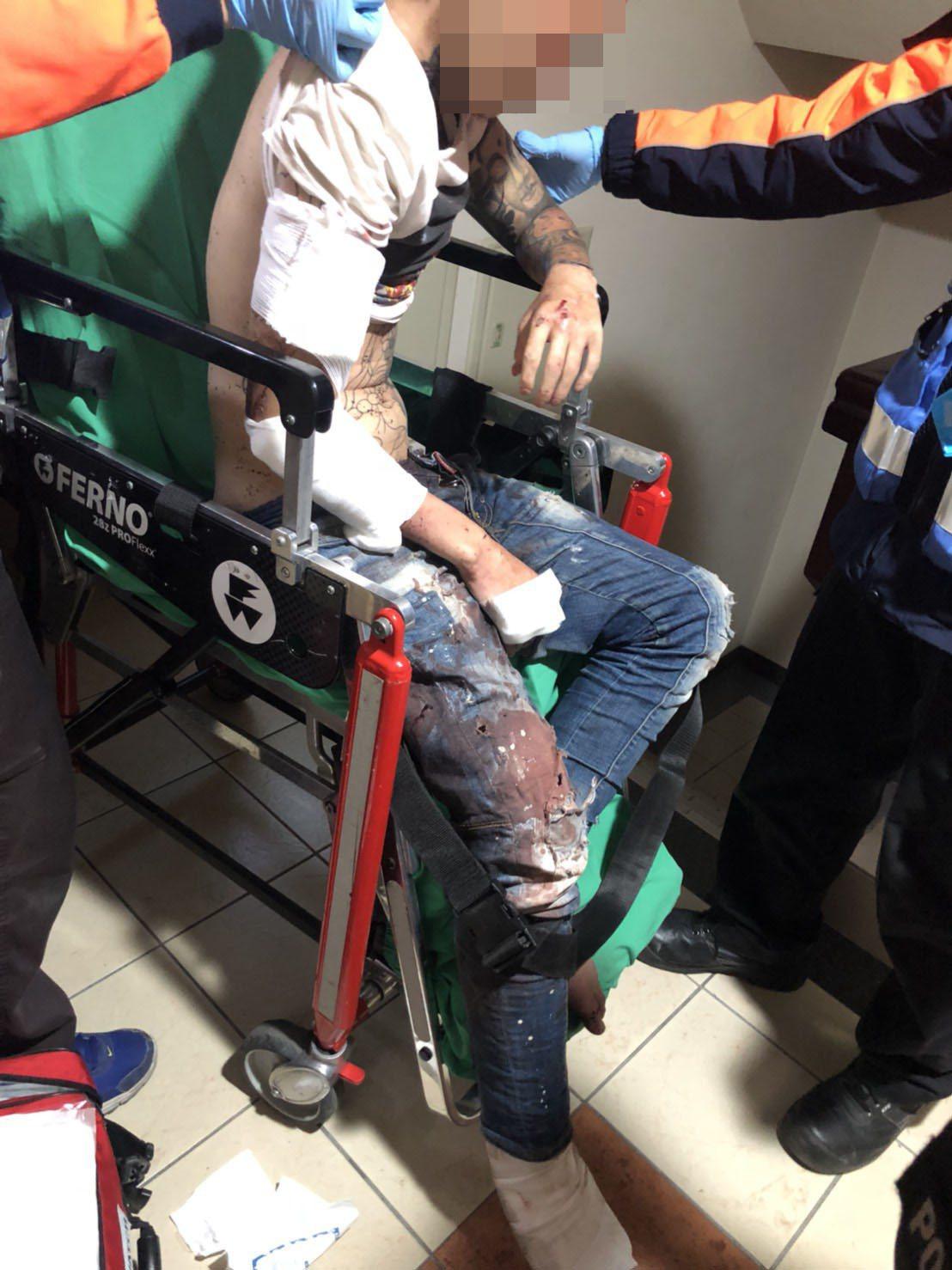 陳姓男子遭陶姓友人涉嫌持牛排刀砍傷送醫。記者黃宣翰/翻攝