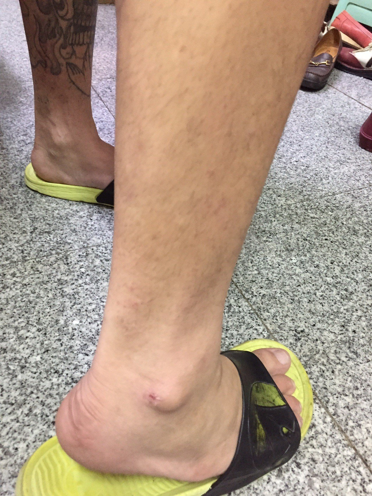 林男被車衝撞又被棍棒毆打,造成手部挫傷及腳部擦傷。記者張媛榆/翻攝