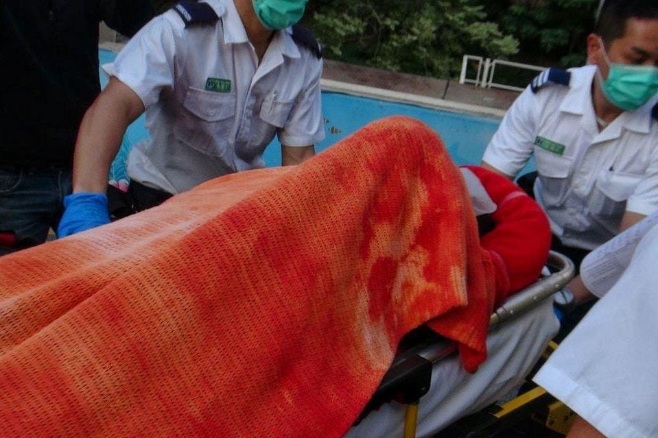 女陸客黃曉儀右腳重傷最後需要截肢。圖/擷自香港01資料照