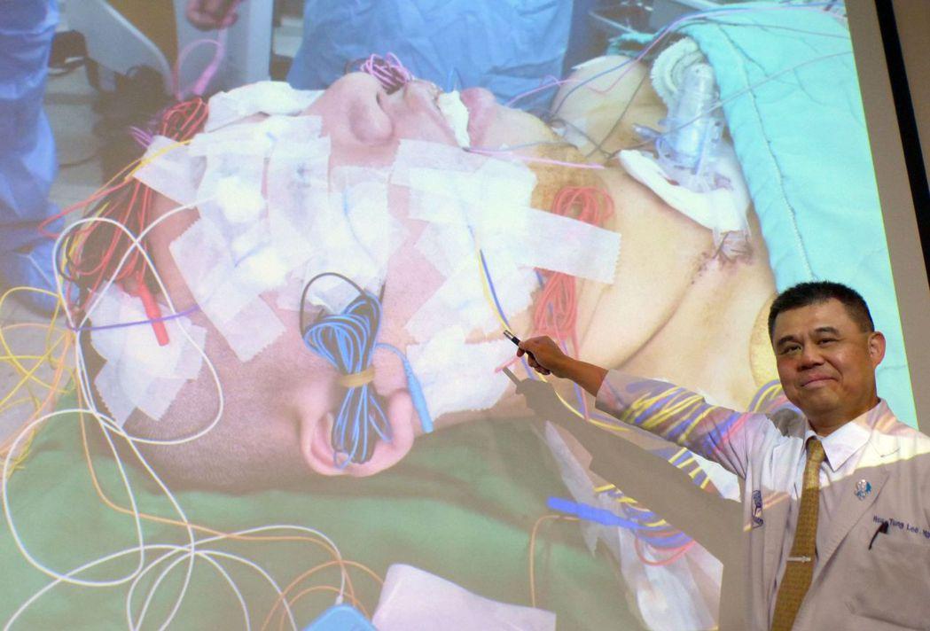 醫師李旭東說明,腦腫瘤手術中,透過在男大生的臉部等處扎下50多支電擊針監測神經功...
