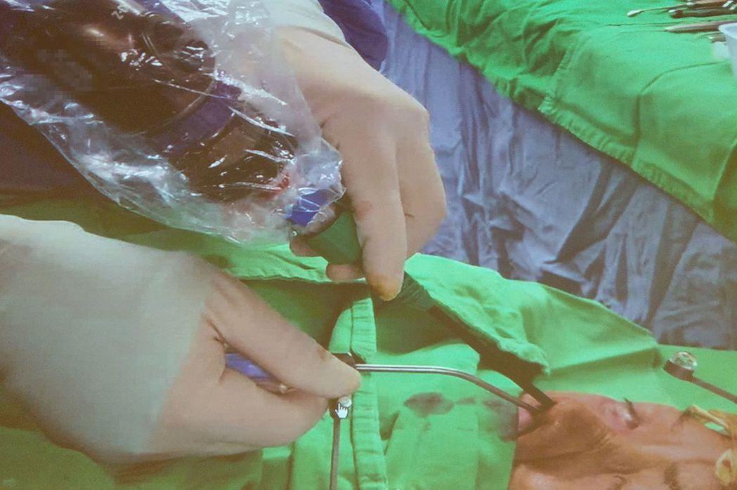 醫師張丞賢說明,嚴姓男病患接受內視鏡經鼻腔手術,深入左眼窩底部,並配合導航精確打...