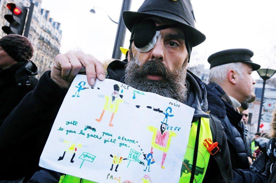 廣場的另一端,一位戴著牛仔帽、單眼貼上繃帶的「獨眼龍」在記者簇擁下步入遊行隊伍,...