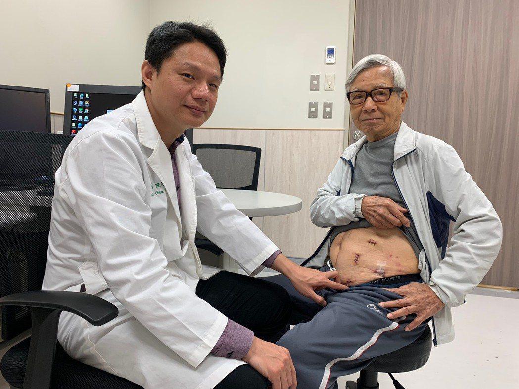 泌尿科主任陳冠亨以「腹腔鏡部分腎臟切除」手術,成功切除長寬約3公分的惡性腫瘤。記...