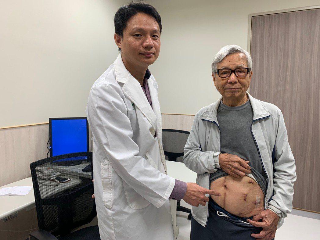 一名85歲的黃男今年發現左部腎臟有惡性腫瘤,到中國醫藥大學新竹附設醫院就診。記者...