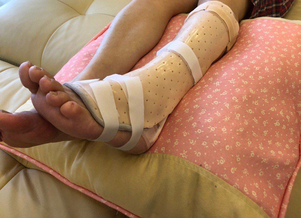 腳後跟阿基里斯腱受傷示意圖。記者許政榆/攝影
