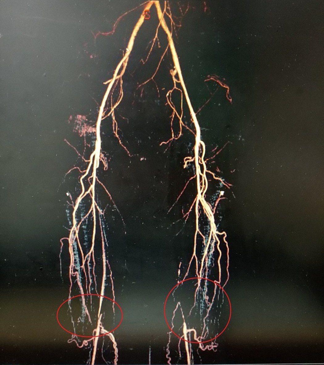 廖姓男子兩腿血管阻塞,導致血液不易下流(紅圈處),影響他的行走能力。圖/大千綜合...