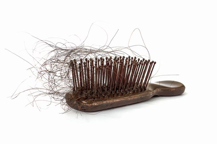 我們在正常情況下每天也都是會掉髮的,只是多數人那些頭髮還可以再長回來,而如果頭髮...