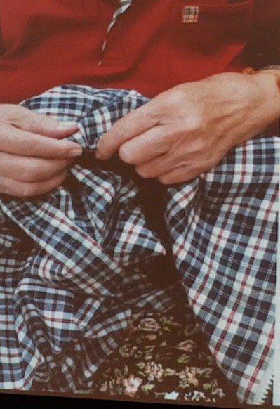 罹患路易體失智症患者睡夢中容易有手舞足蹈的情況,圖中的老婦夢中會做出縫衣服的樣子...