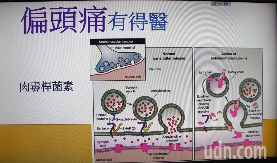 陳睿正說,研究證實肉毒桿菌素對於大腦中與偏頭痛密切相關的神經傳導物質CGRP 和...