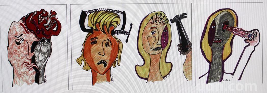 各種偏頭痛的感受。記者張雅婷/攝影