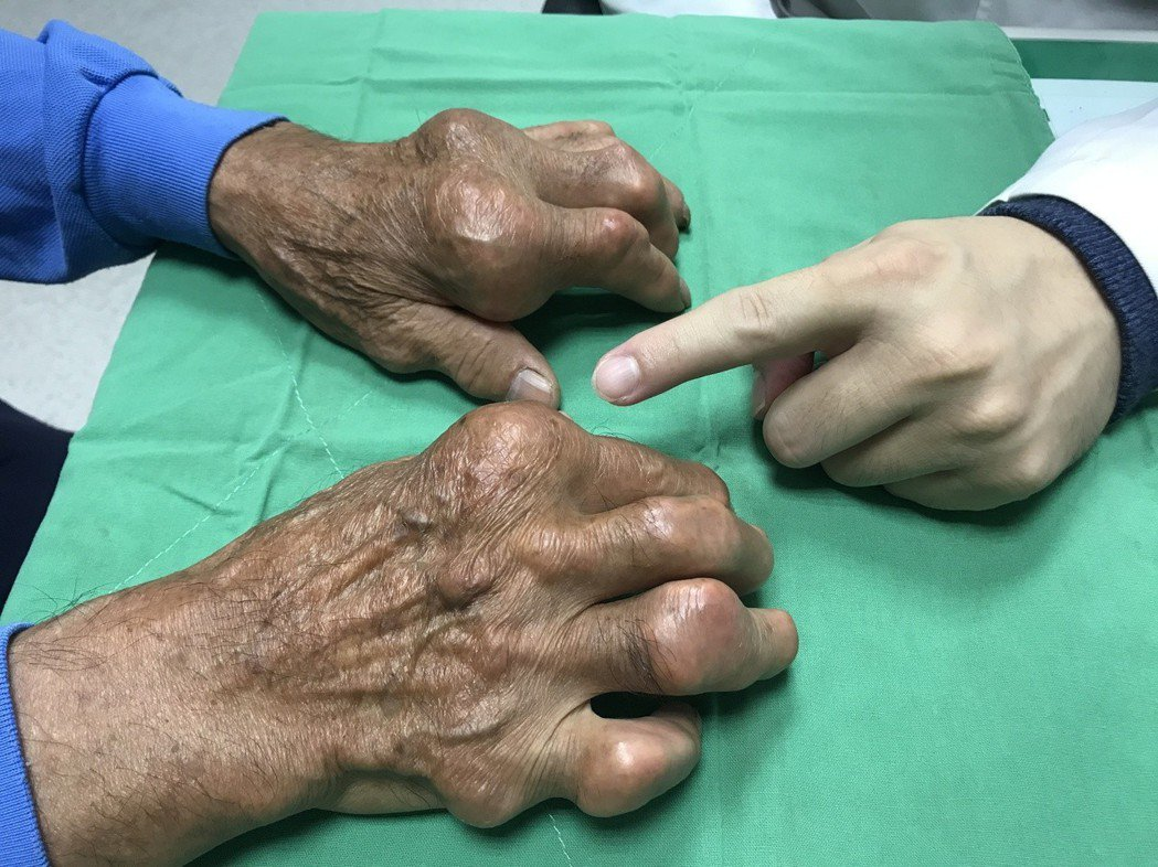 痛風患者喜愛大啖海鮮、火鍋,痛風史長達20年,手指關節及手肘處關節竟腫脹變形,圖...