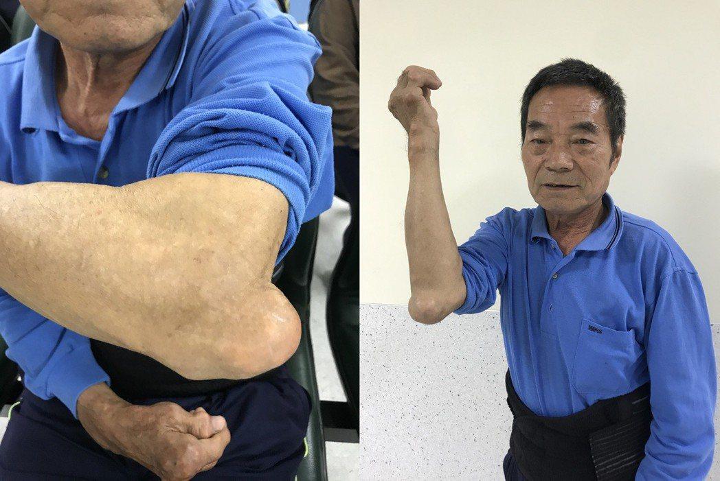 69歲林姓男子喜愛大啖海鮮、火鍋,痛風史長達20年,手指關節及手肘處關節竟腫脹變...