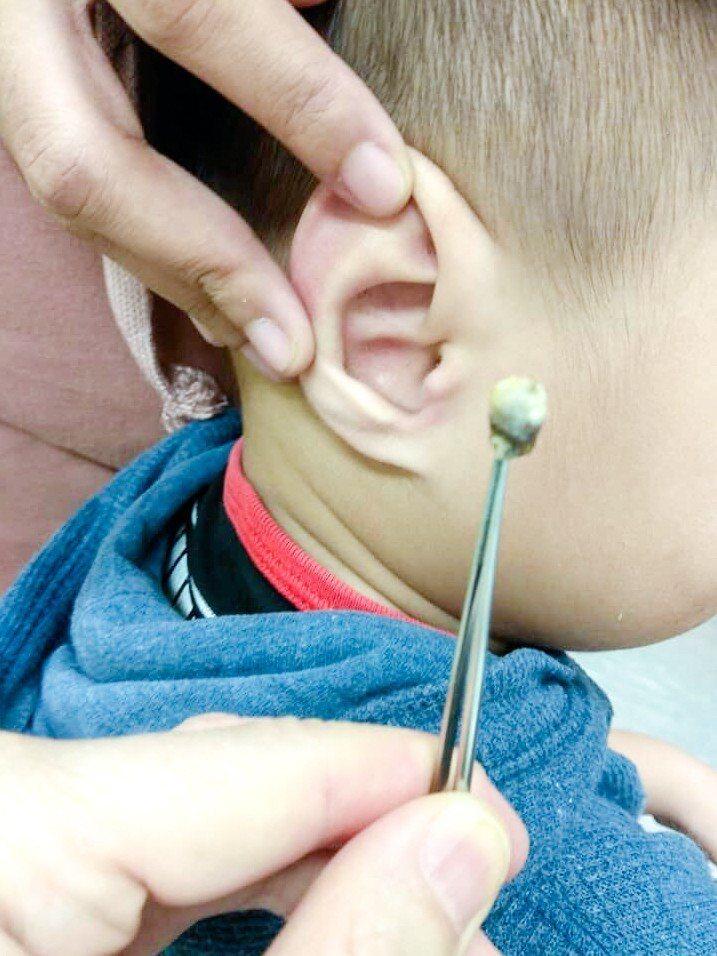 門諾醫院小兒科主任鄭永隆說,孩子耳朵被耳屎塞住,已經嚴重影響聽力,應求助專業醫師...