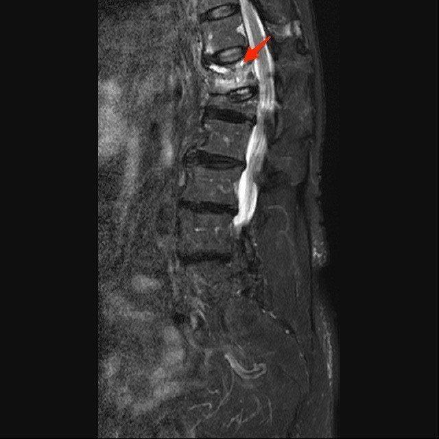 核磁共振可見胸椎十二節為新的骨折處,錐體呈現高亮度訊號, 下面的腰椎第一節為舊的...