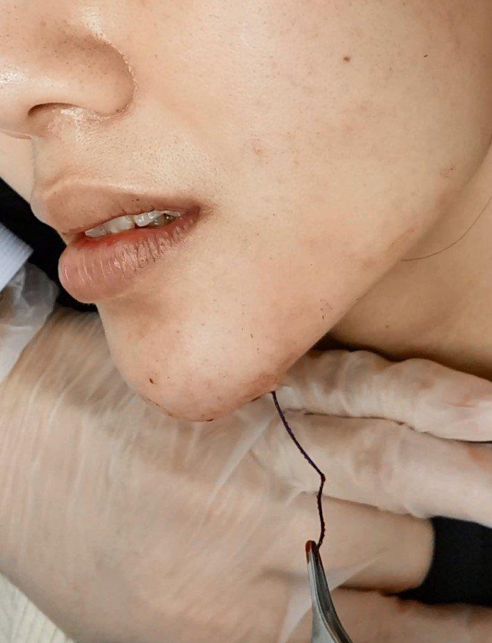 女子到國外接受埋線拉皮,臉部凸出像鋼筋外露。圖/王正坤提供