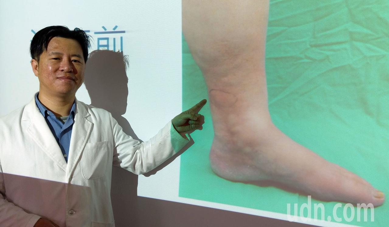 醫師林子鈞說明,梁姓女病患就診時,左小腿經診斷是靜脈曲張引起的蜂窩性組織炎。 記...
