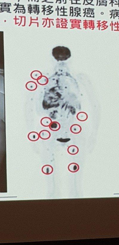 61歲肺癌罹患者正子掃描影像到處亮晃晃(紅圈處)都是癌症轉移。 記者修瑞瑩/翻攝